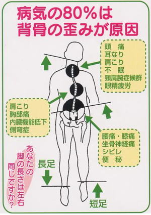 背骨の歪みは生活習慣にて発症します。