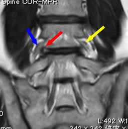 左L4-5  FLDH  術前MRI 冠状断