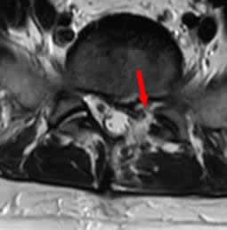 初回術後MRI横断像