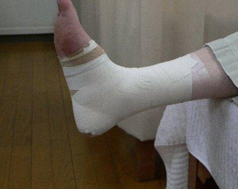 足関節のテーピング