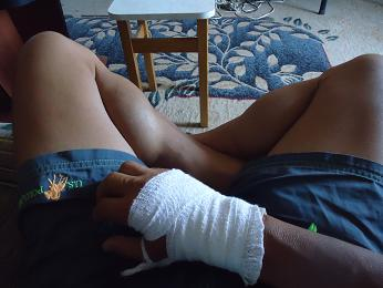右手首負傷