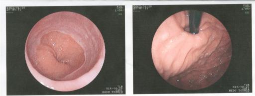 胃カメラ1