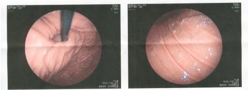 胃カメラ2