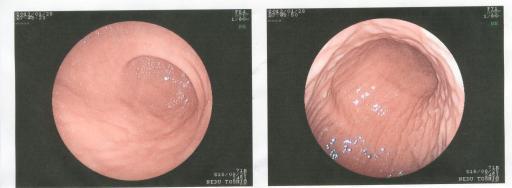 胃カメラ3