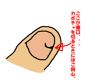 IMG_1507爪があってよかった
