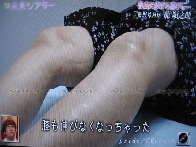 IMG_8174121116_2.jpg