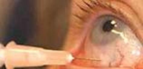 眼球ステロイド