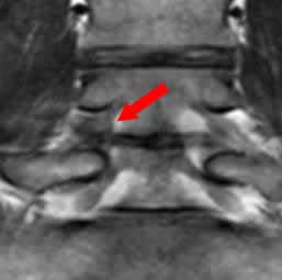 椎間孔狭窄右L4-5 術後 冠状断