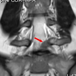 椎間板ヘルニア  冠状断
